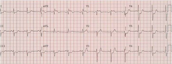 STE-aVR-ostial-LAD-thrombus